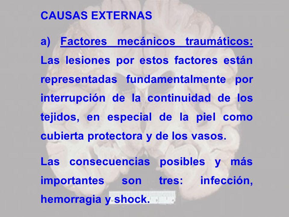 CAUSAS EXTERNAS