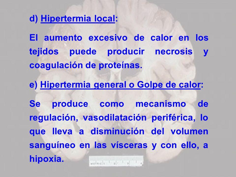 d) Hipertermia local: El aumento excesivo de calor en los tejidos puede producir necrosis y coagulación de proteínas.