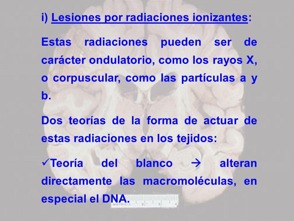 i) Lesiones por radiaciones ionizantes: