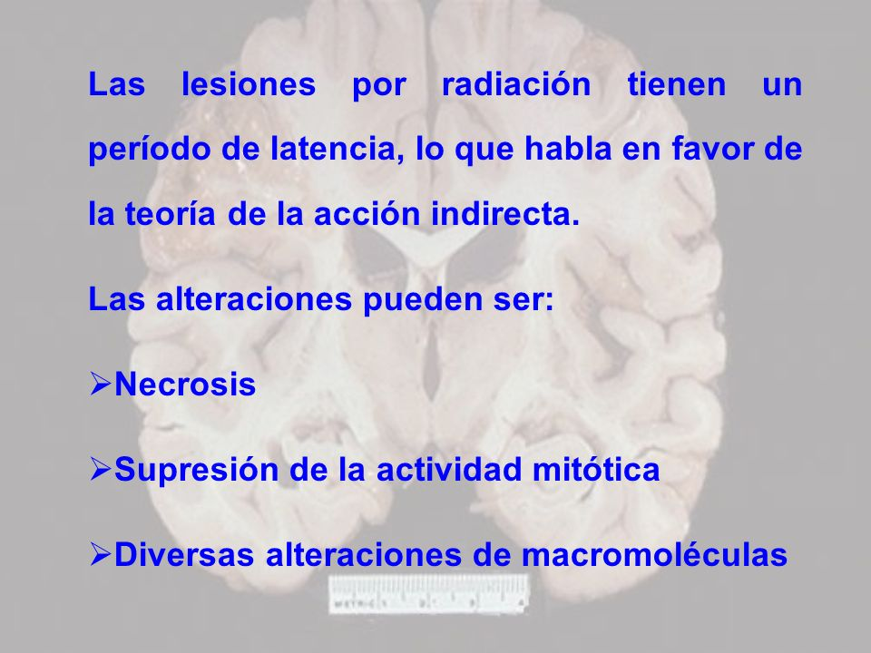 Las lesiones por radiación tienen un período de latencia, lo que habla en favor de la teoría de la acción indirecta.
