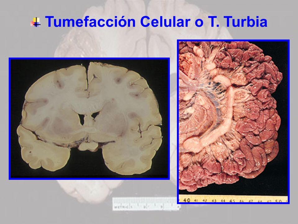 Tumefacción Celular o T. Turbia