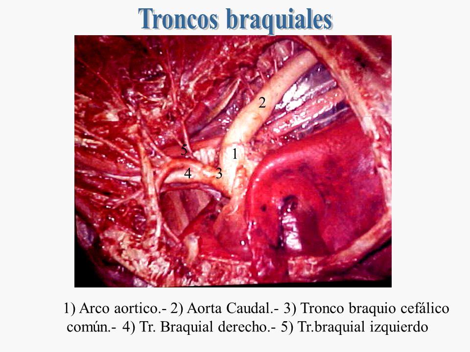 Troncos braquiales2. 5. 1. 4. 3. 1) Arco aortico.- 2) Aorta Caudal.- 3) Tronco braquio cefálico.
