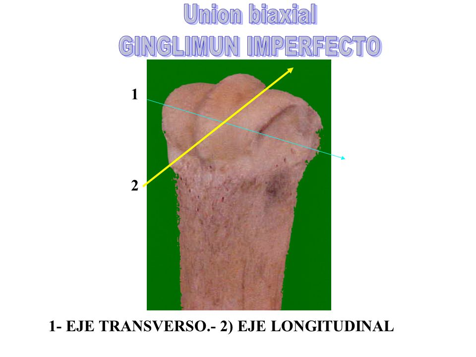 Union biaxial GINGLIMUN IMPERFECTO 1 2