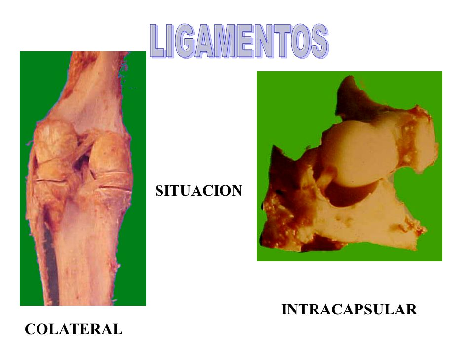 LIGAMENTOS SITUACION INTRACAPSULAR COLATERAL