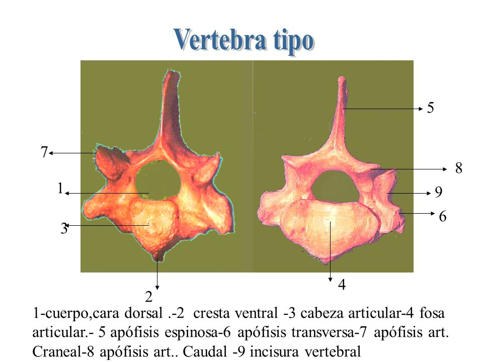 Vertebra tipo 5. 7. 8. 1. 9. 6. 3. 4. 2. 1-cuerpo,cara dorsal .-2 cresta ventral -3 cabeza articular-4 fosa.