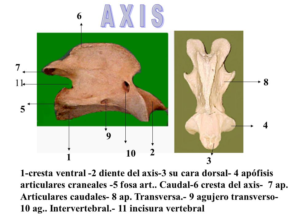A X I S 6. 7. 11. 8. 5. 4. 9. 10. 2. 1. 3. 1-cresta ventral -2 diente del axis-3 su cara dorsal- 4 apófisis.