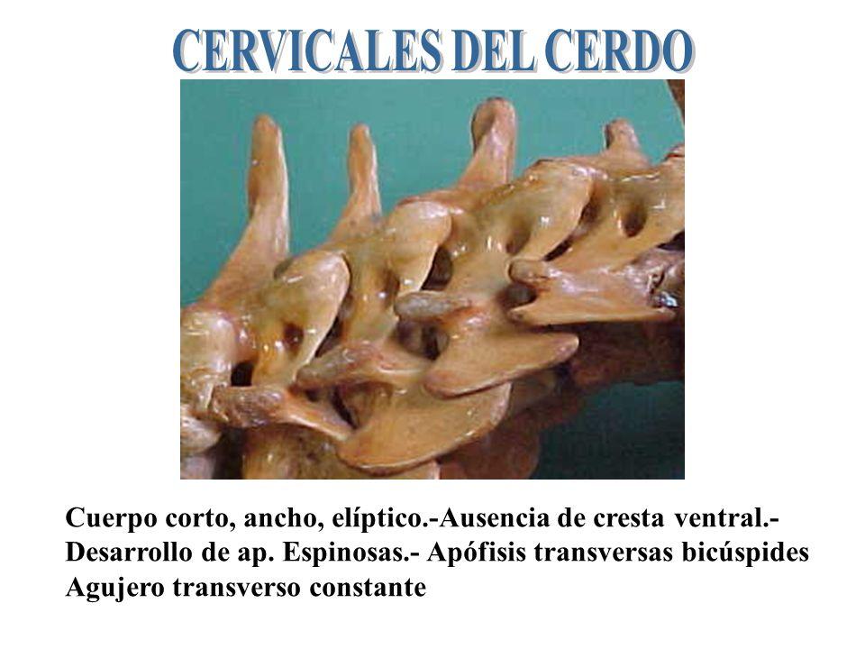 CERVICALES DEL CERDO Cuerpo corto, ancho, elíptico.-Ausencia de cresta ventral.- Desarrollo de ap. Espinosas.- Apófisis transversas bicúspides.