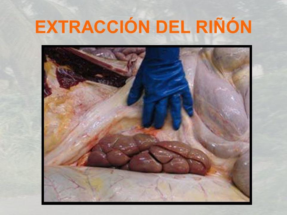 EXTRACCIÓN DEL RIÑÓN