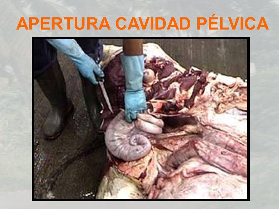 APERTURA CAVIDAD PÉLVICA