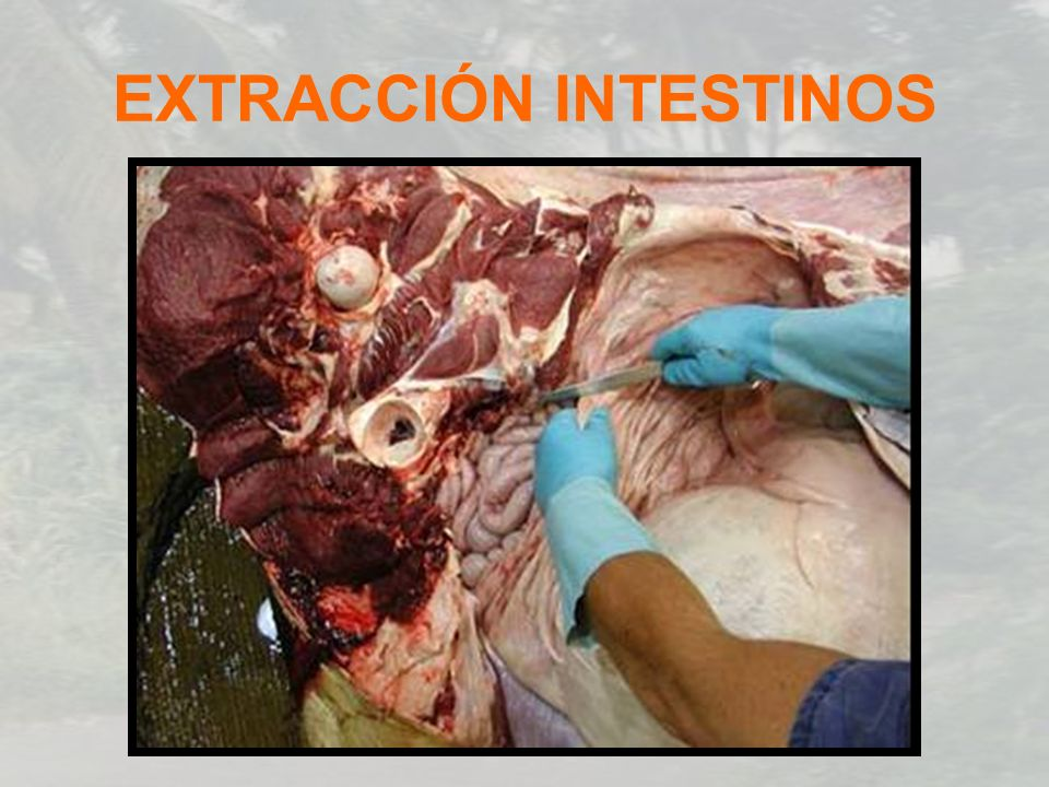 EXTRACCIÓN INTESTINOS