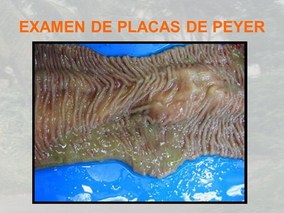EXAMEN DE PLACAS DE PEYER