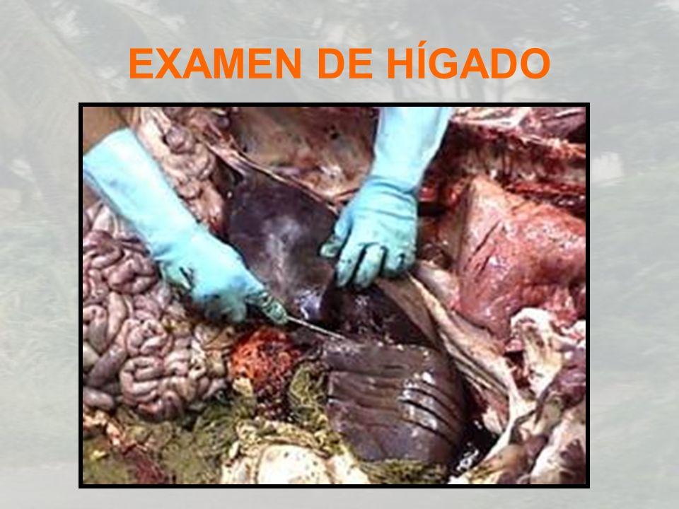 EXAMEN DE HÍGADO