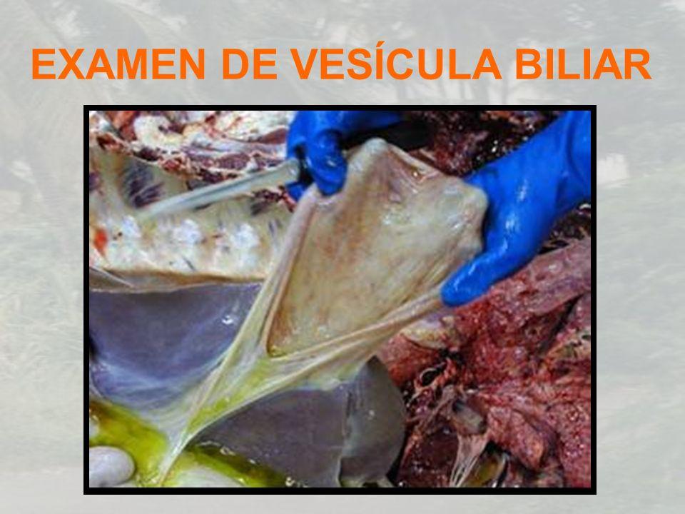 EXAMEN DE VESÍCULA BILIAR