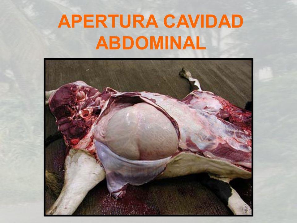 APERTURA CAVIDAD ABDOMINAL