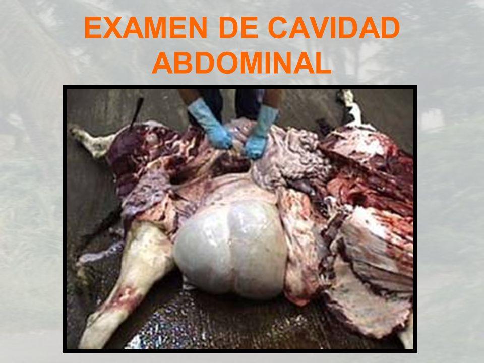 EXAMEN DE CAVIDAD ABDOMINAL