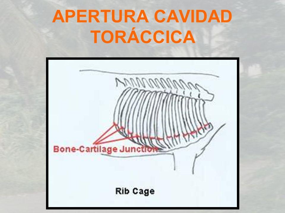 APERTURA CAVIDAD TORÁCCICA