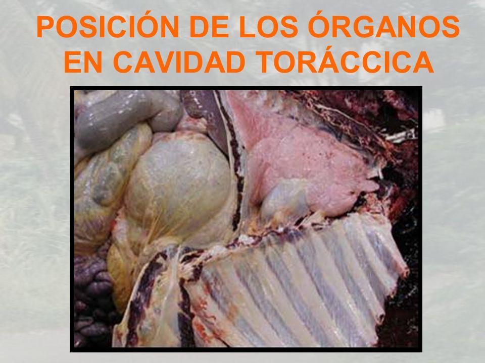 POSICIÓN DE LOS ÓRGANOS EN CAVIDAD TORÁCCICA