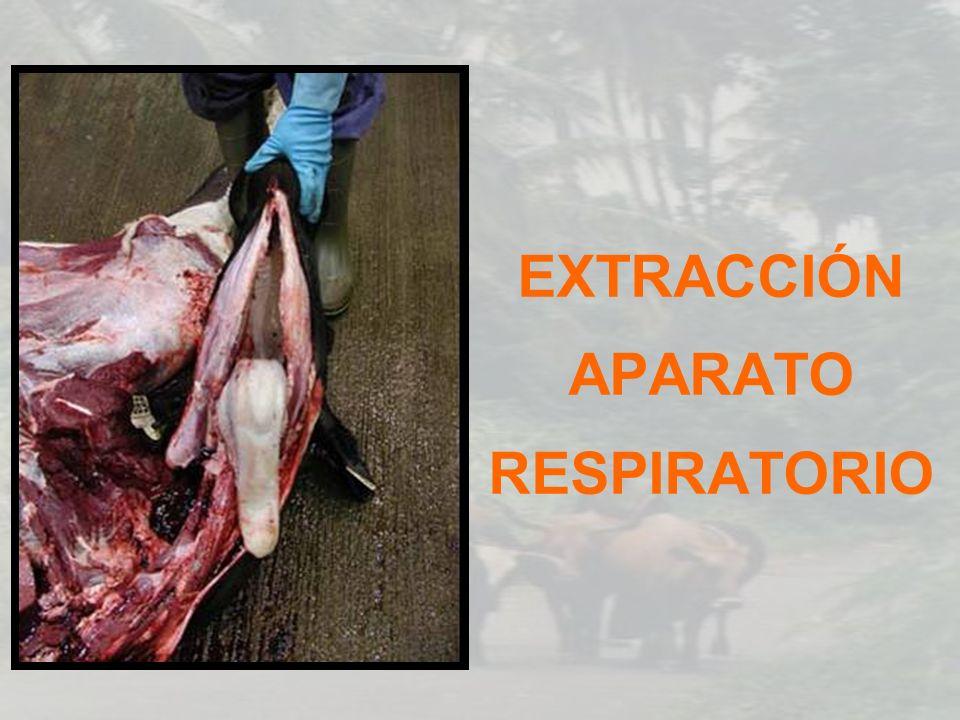 EXTRACCIÓN APARATO RESPIRATORIO