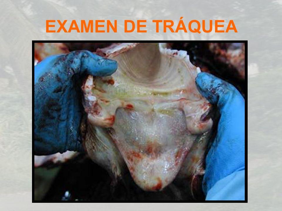 EXAMEN DE TRÁQUEA