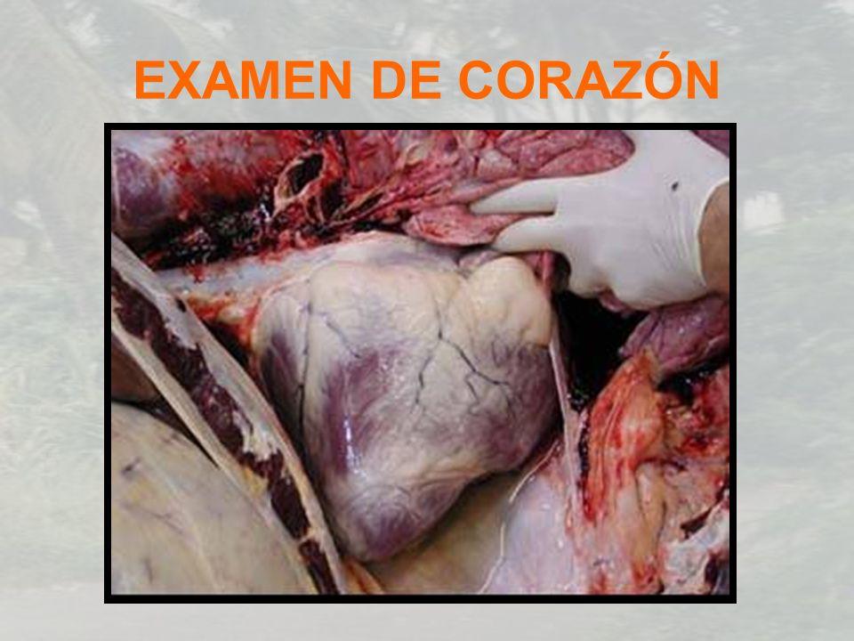 EXAMEN DE CORAZÓN