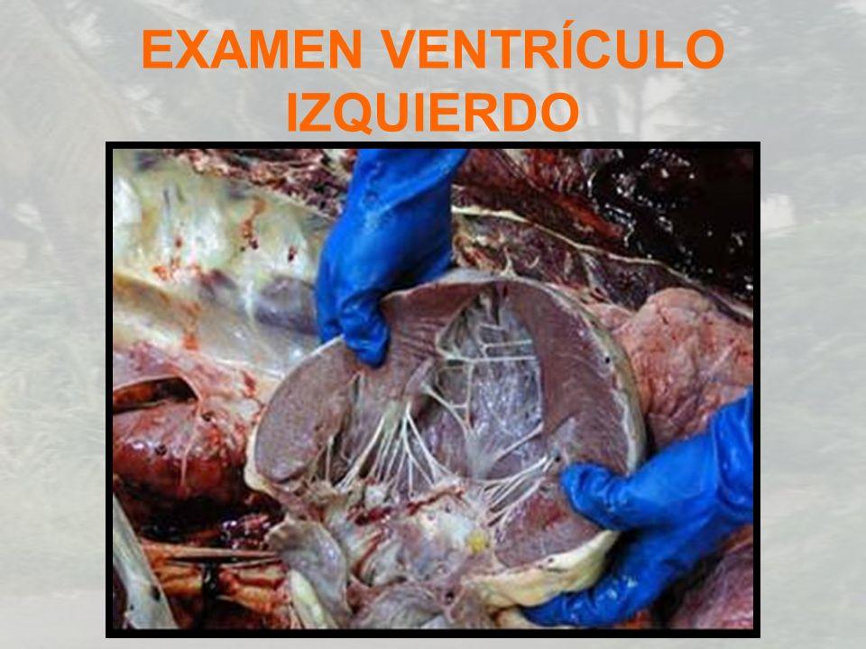 EXAMEN VENTRÍCULO IZQUIERDO