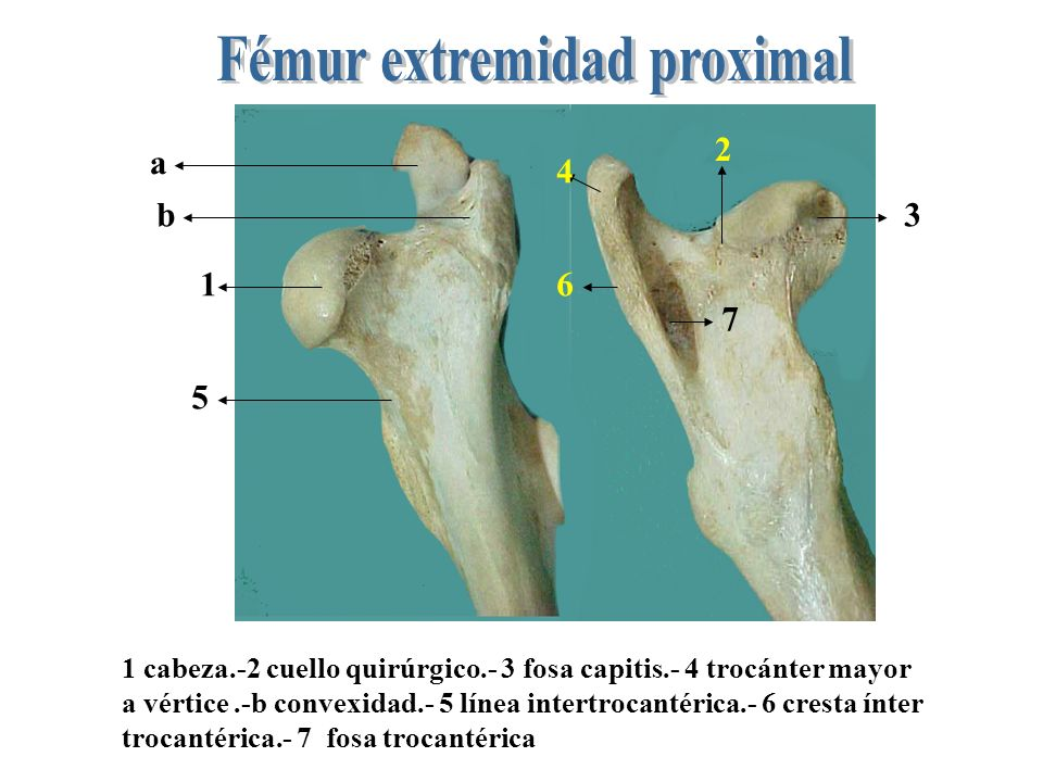 Fémur extremidad proximal