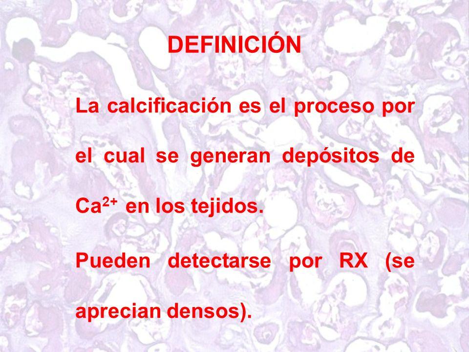 DEFINICIÓN La calcificación es el proceso por el cual se generan depósitos de Ca2+ en los tejidos.