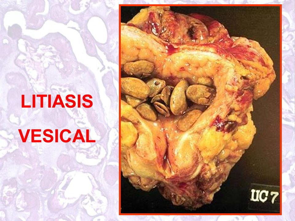 LITIASIS VESICAL
