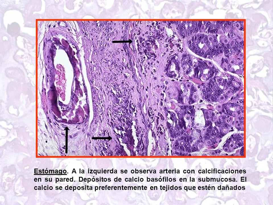 Estómago. A la izquierda se observa arteria con calcificaciones en su pared.