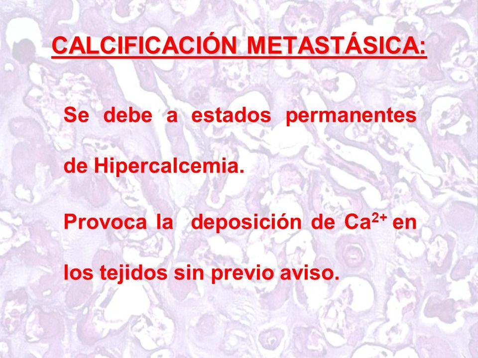 CALCIFICACIÓN METASTÁSICA: