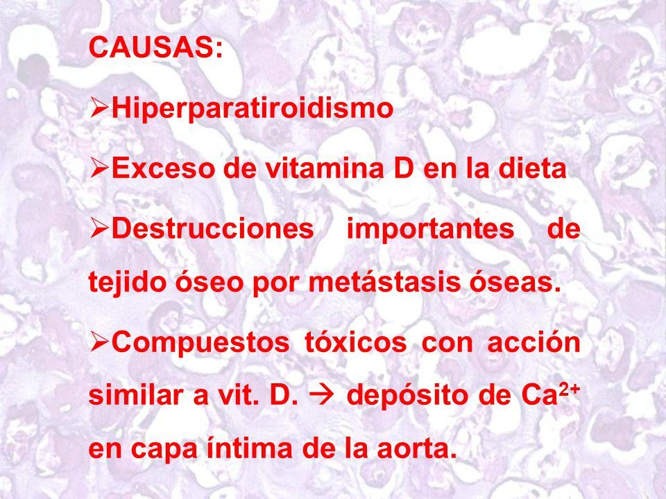 CAUSAS: Hiperparatiroidismo. Exceso de vitamina D en la dieta. Destrucciones importantes de tejido óseo por metástasis óseas.