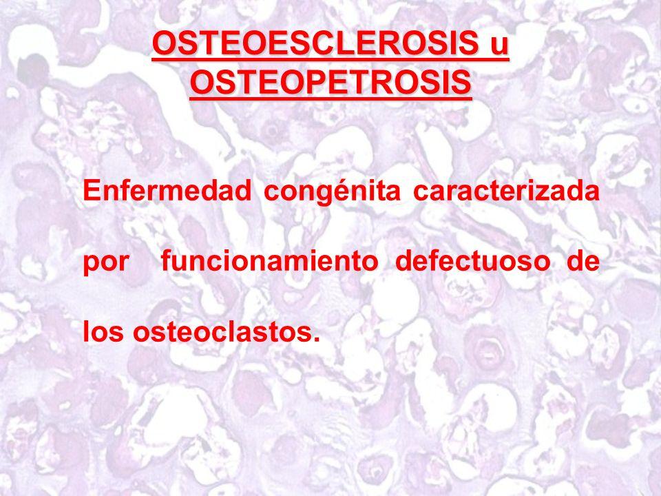 OSTEOESCLEROSIS u OSTEOPETROSIS
