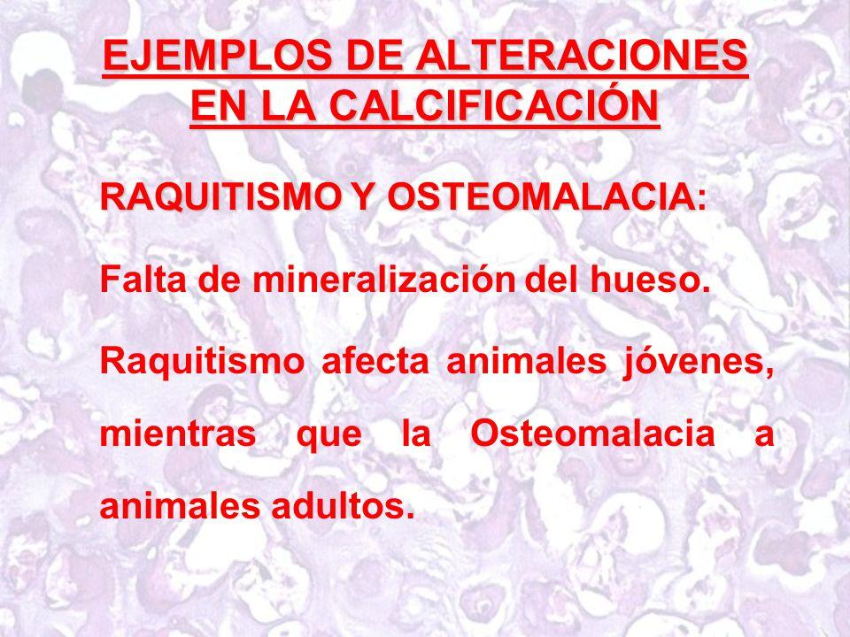 EJEMPLOS DE ALTERACIONES EN LA CALCIFICACIÓN