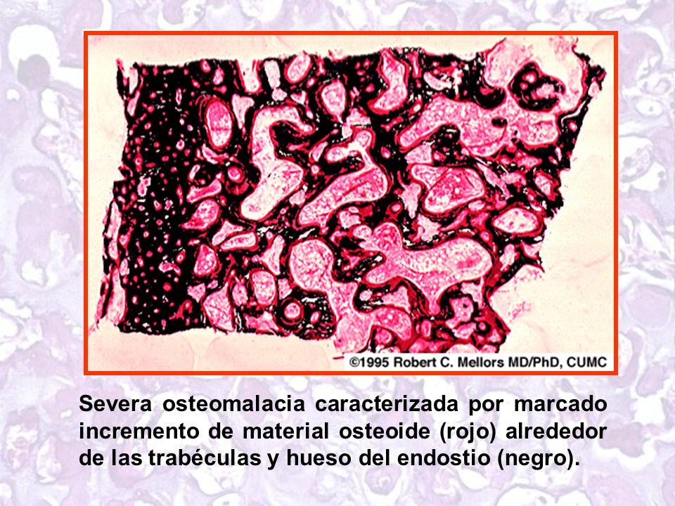 Severa osteomalacia caracterizada por marcado incremento de material osteoide (rojo) alrededor de las trabéculas y hueso del endostio (negro).