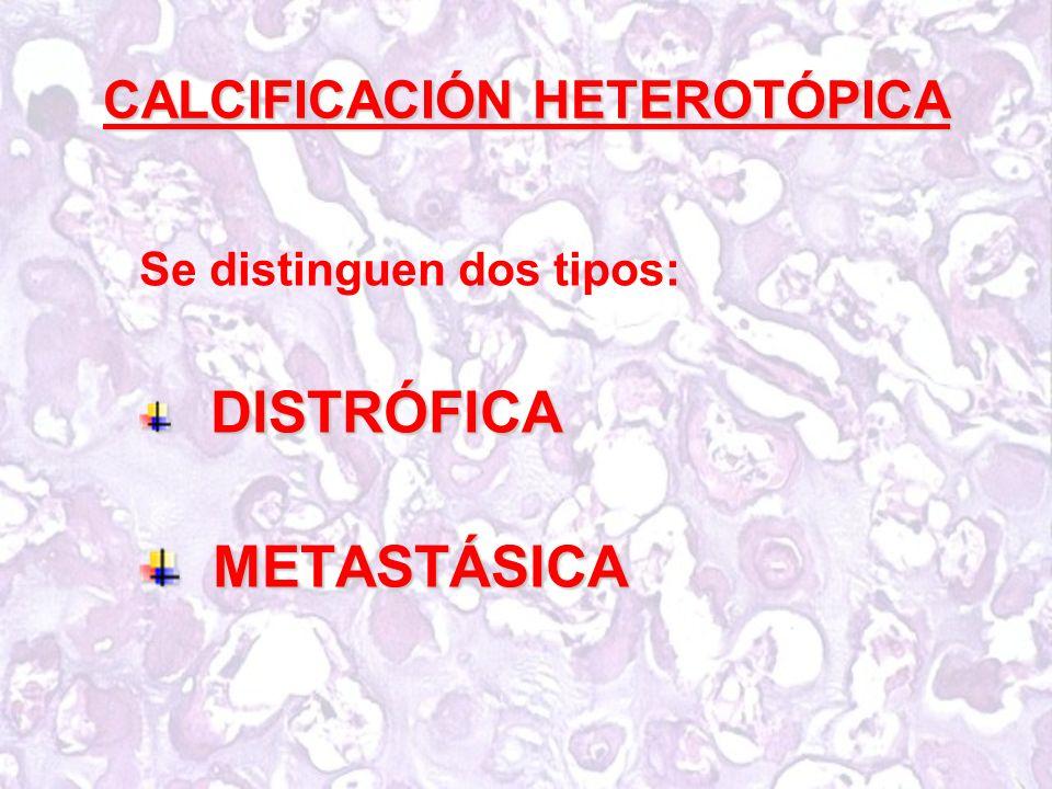 CALCIFICACIÓN HETEROTÓPICA