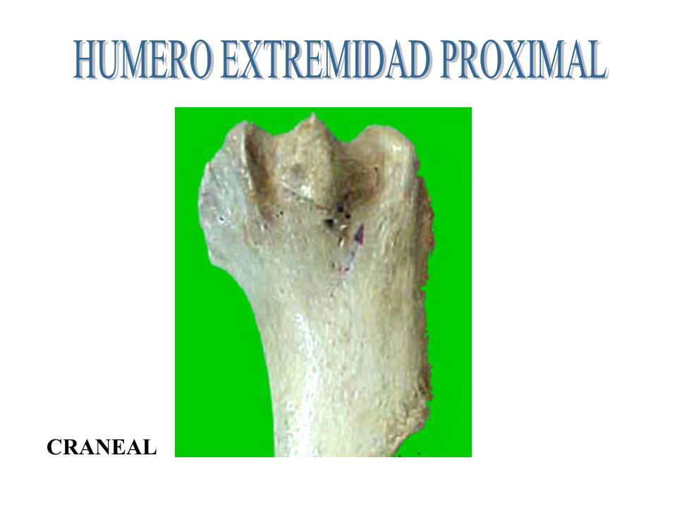 HUMERO EXTREMIDAD PROXIMAL