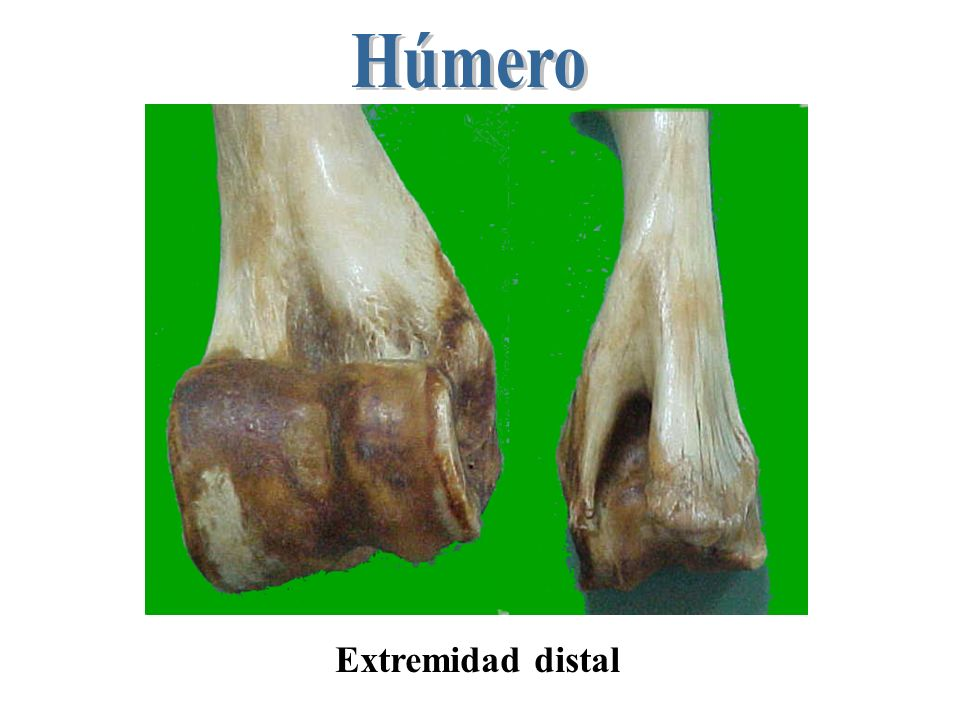 Húmero Extremidad distal