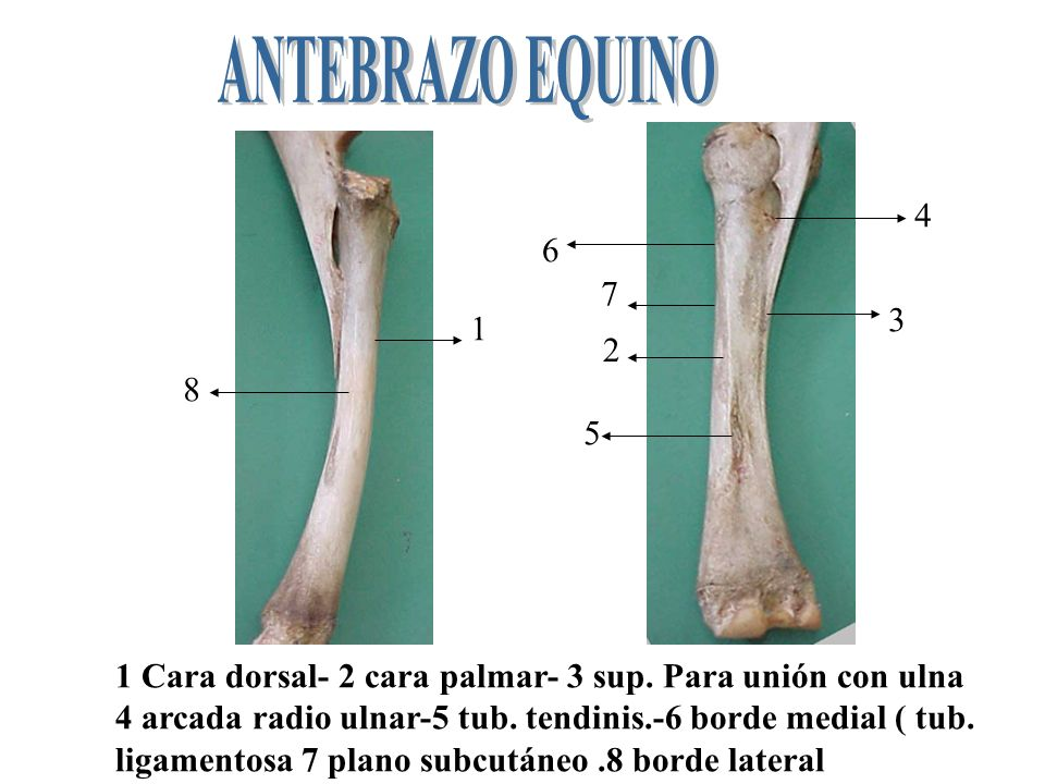 ANTEBRAZO EQUINO 4. 6. 7. 3. 1. 2. 8. 5. 1 Cara dorsal- 2 cara palmar- 3 sup. Para unión con ulna.