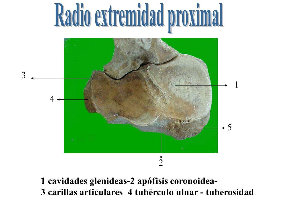 Radio extremidad proximal