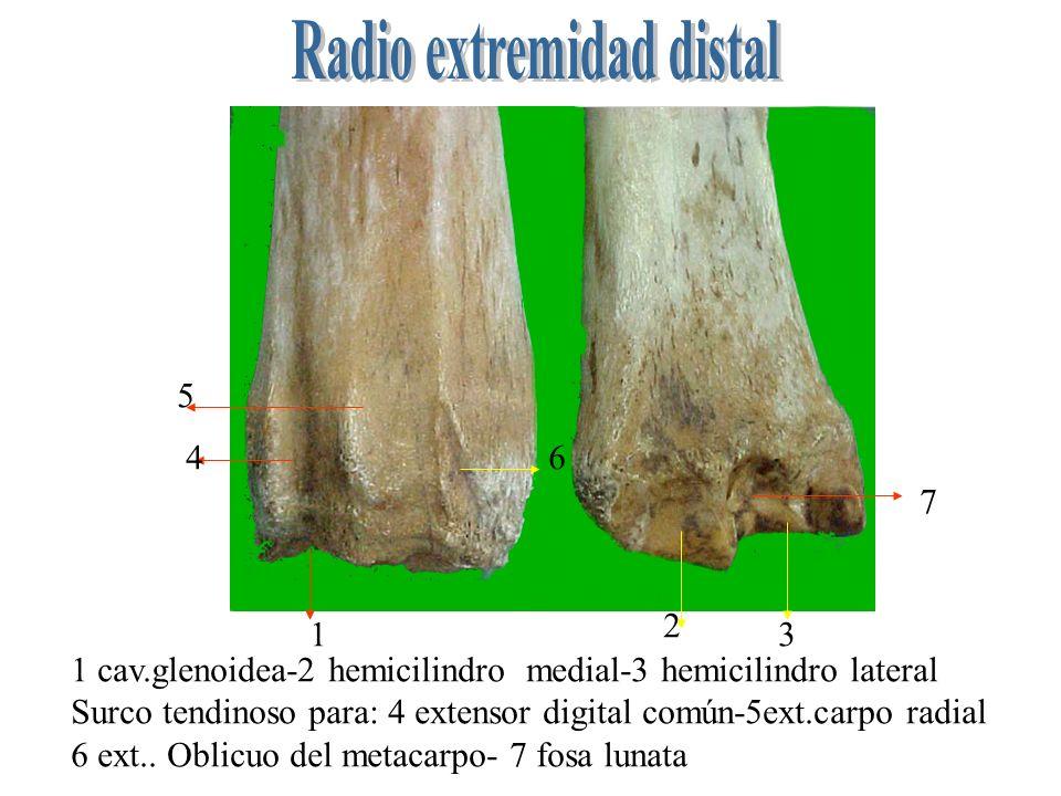 Radio extremidad distal