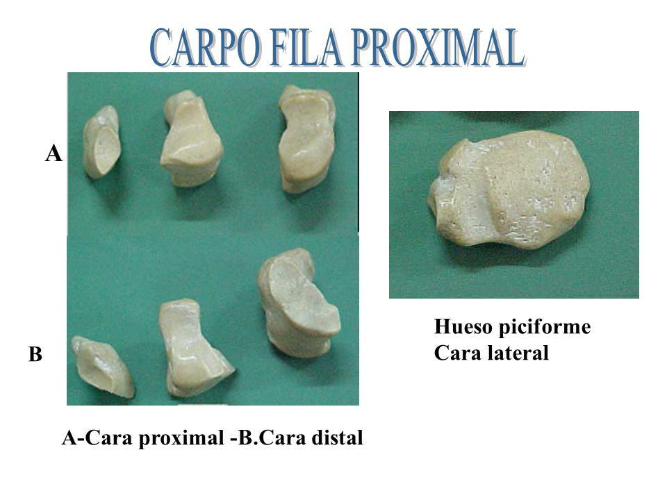 CARPO FILA PROXIMAL A Hueso piciforme Cara lateral B