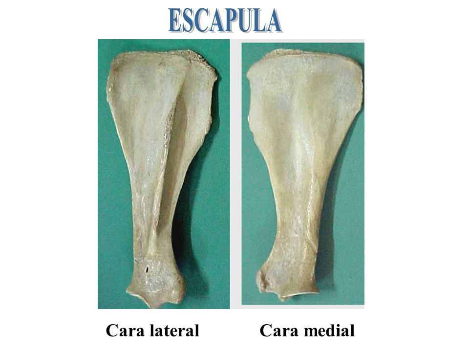 ESCAPULA Cara lateral Cara medial