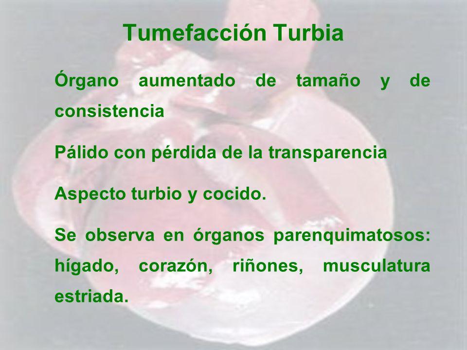 Tumefacción Turbia Órgano aumentado de tamaño y de consistencia