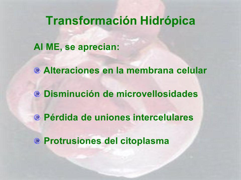 Transformación Hidrópica