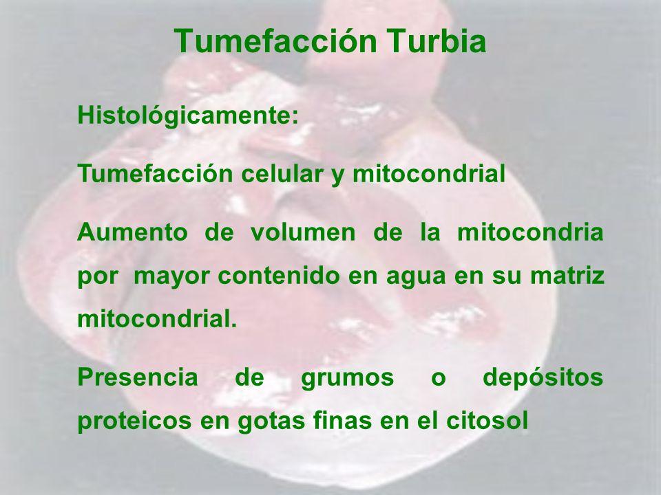 Tumefacción Turbia Histológicamente: