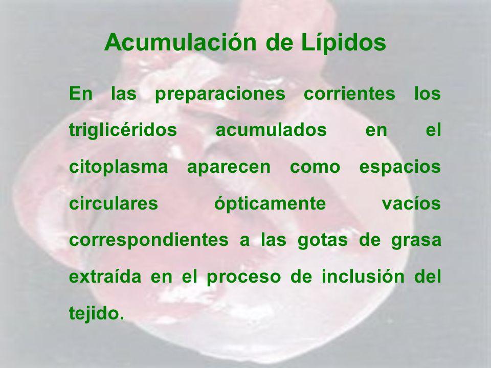 Acumulación de Lípidos