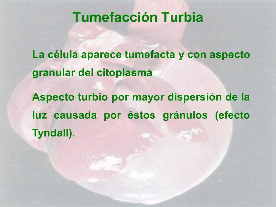 Tumefacción Turbia La célula aparece tumefacta y con aspecto granular del citoplasma.