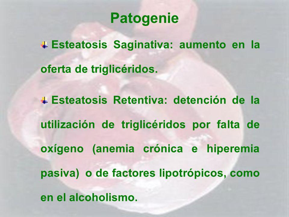 Patogenie Esteatosis Saginativa: aumento en la oferta de triglicéridos.
