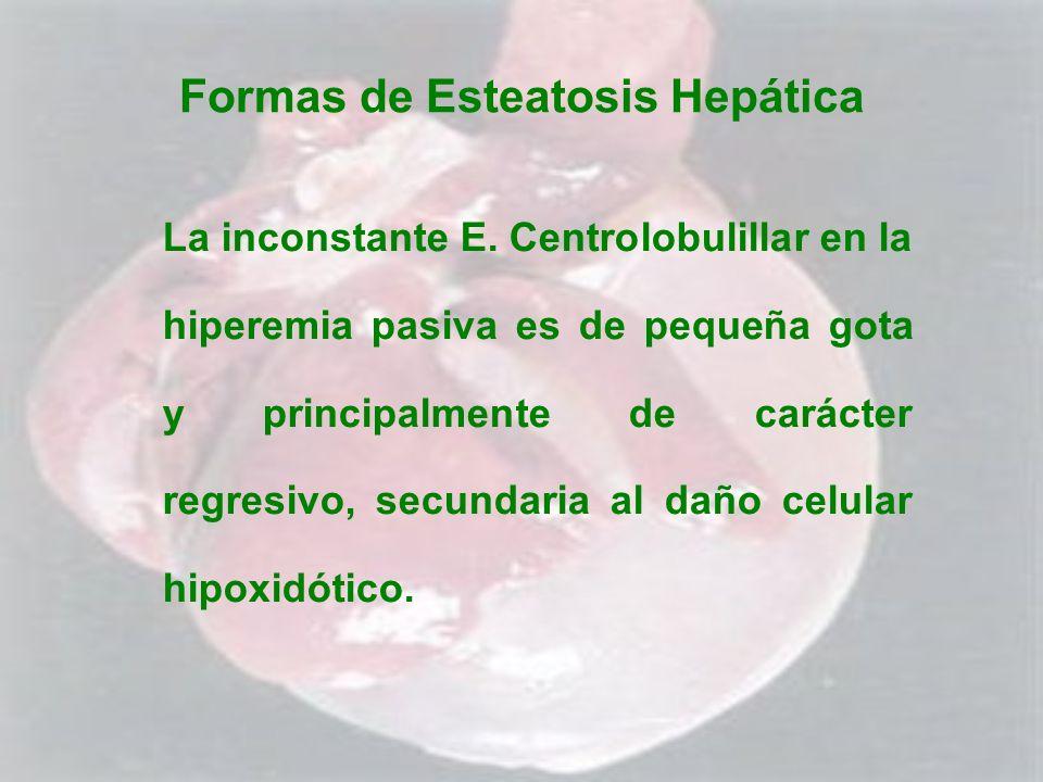 Formas de Esteatosis Hepática