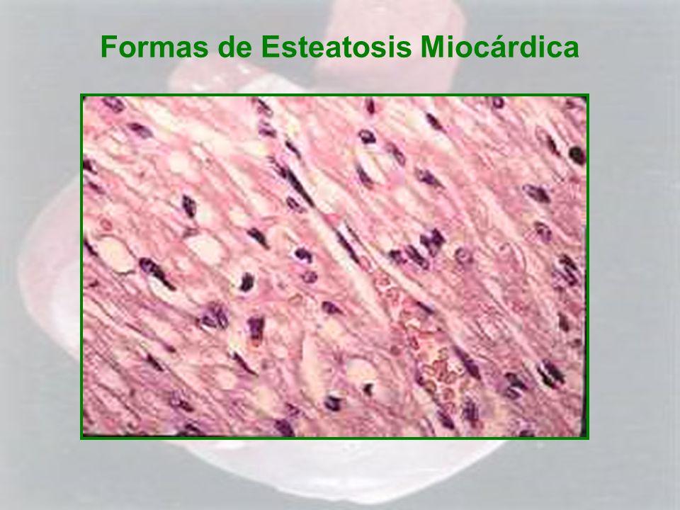 Formas de Esteatosis Miocárdica